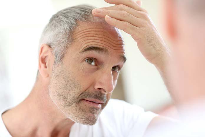 Mężczyzna obserwujący skutki łysienia androgenowego